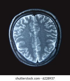 A magnetic resonance imaging scan of the human brain from the topview.