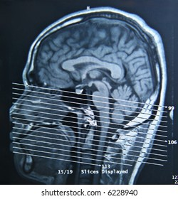 A magnetic resonance imaging scan of the human brain.