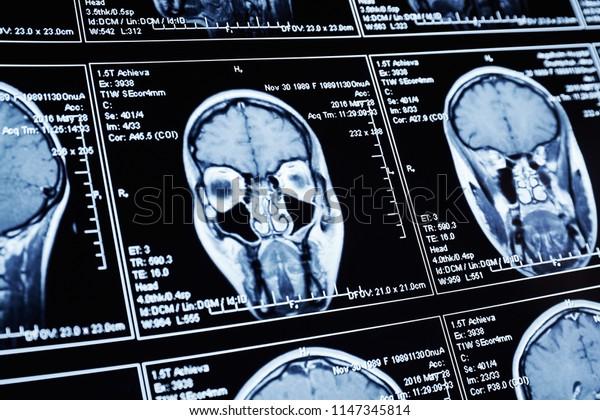Magnetic resonance scan of the brain. MRI head scan.
