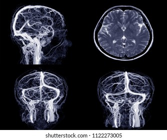 Magnetic resonance venography(MRV) Brain of veins in human head.