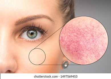 A magnified circle is seen over the cheek of a pretty caucasian woman, a closer look at the skin reveals redness and flushing, a common complaint in young adults.