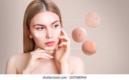Magnifying circles demonstrate couperose and acne on face skin of young woman. Over beige background.