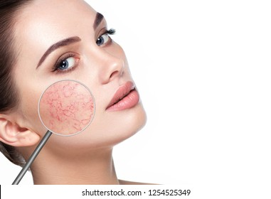 magnifying glass showing couperose on face skin. Woman showing problems couperose-prone sensitive skin