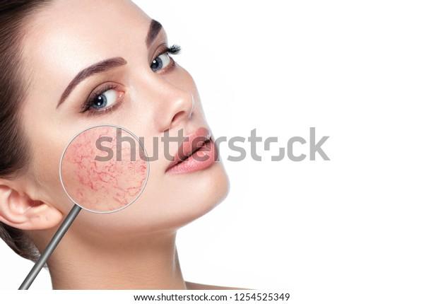 problemas cutaneos en la cara