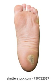 major foot calluses on heel isolated with clipping path