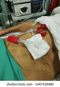 Malacca, Malaysia : 09/05 /2019 :PEG tube being placed at the gastric via endoscopic technique under aseptic precaution.