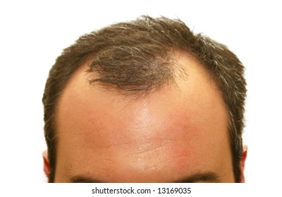 male balding head