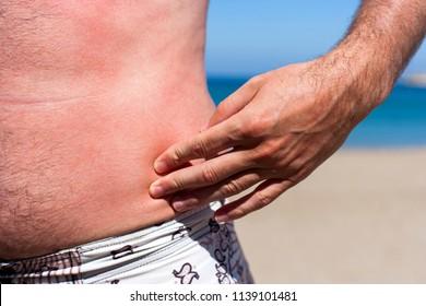 Male body summer vacation sunburn