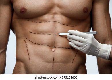 Male Body Surgery. Closeup Of Young Man's Fit Torso With Surgical Lines On Abs Before Plastic Surgery Operation. Close-up of Doctor's Hand Holding Scalpel Near Man's Body Skin. High Resolution