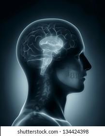 Male Brain stem medical x-ray scan