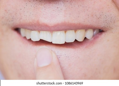 Male broken teeth damaged cracked front tooth need dentist to fix and repair.