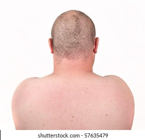 male close up picture of back and shaved thinning hair