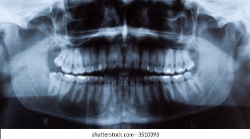 Male dental x-ray showing teeth fillings