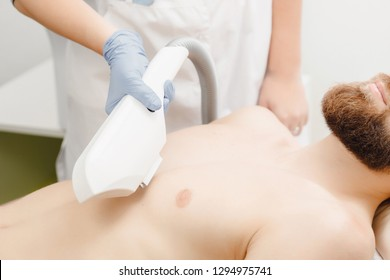 Male depilation laser hair removal chest procedure treatment in salon