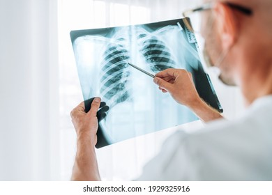 Male doctor examining the patient chest x-ray film lungs scan at radiology department in hospital.Covid-19 scan body xray test detection for covid worldwide virus epidemic spread concept. - Shutterstock ID 1929325916