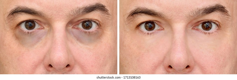 Male eye bags before and after cosmetic treatment or plastic procedure, blepharoplasty. Close-up.
