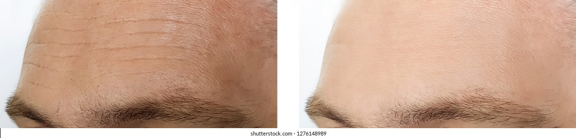 male forehead wrinkles before and after procedures