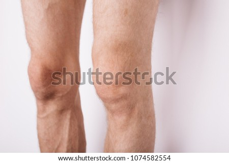 Male Hairy Feet Body Parts Knees Stock Photo (Edit Now) 1074582554 ...