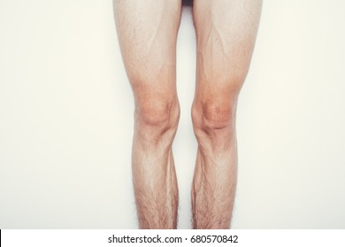 male hairy legs. skinny legs guy. white background. effects of diet