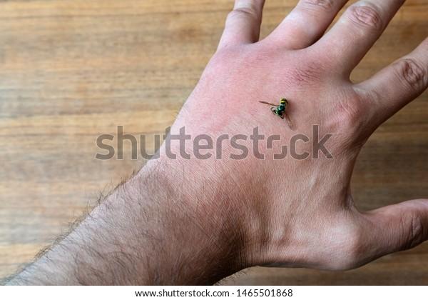 infección de la mano