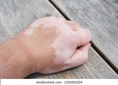 male hand with vitiligo skin condition, characterized by white unpigmented patches or blotches