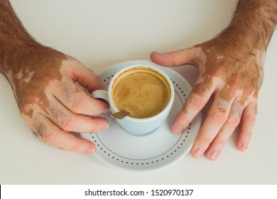 male hands with vitiligo discoloration disease (patchy loss of skin color) holding a cup of coffee.