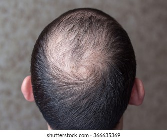 male head with thinning hair or alopecia