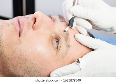 Male microblading procedure to improve the condition of a man's eyebrows in a beauty salon.