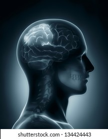 Male Parietal lobe medical x-ray scan