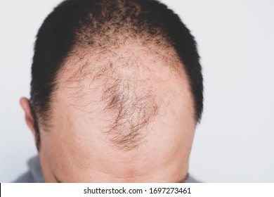 Male pattern hair loss problem concept. Young man losing hair on temples, close up. Space for text. Baldness, alopecia in males.