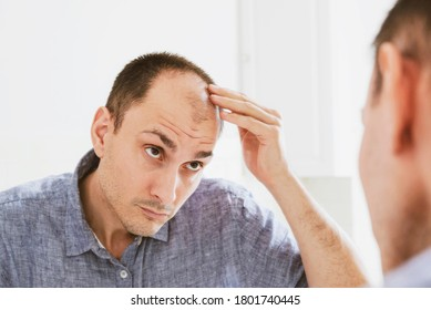 Male pattern hair loss problem concept. Young caucasian man looking at mirror worried about balding. Baldness, alopecia in males.