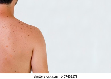 A male shoulder with sunspots