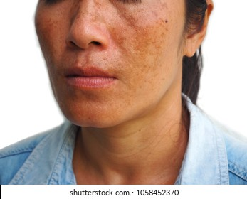 Malesma or fleckle on woman face, skin problem