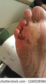 malignant melanoma foot