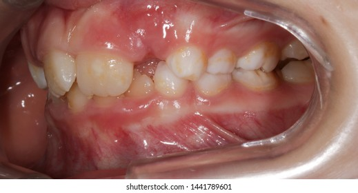 Malocclusion and bad teeth alignment
