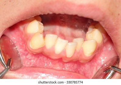 Malocclusion. Crowding of the teeth of the lower jaw