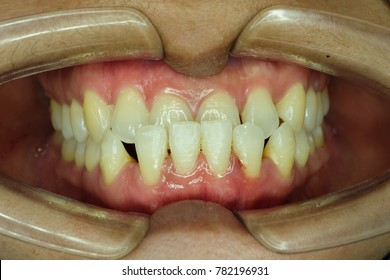 malocclusion of front teeth