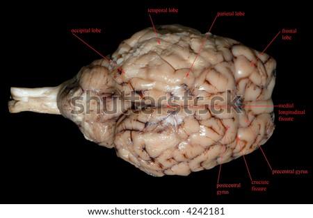 Mammalian brain labelled stock photo edit now 4242181 shutterstock ccuart Images