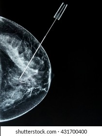 Mammogram Awareness: Wire guided (needle) localization of  a small breast cancer, identified by prior screening mammography.  The surgeon can locate the exact area for excisional biopsy (lumpectomy).
