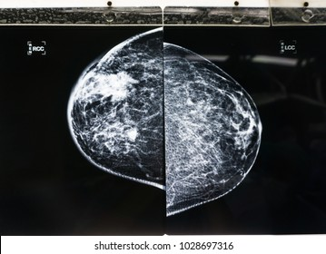 Mammogram film showing huge right upper outer quadrant of right breast carcinoma with metastasis to axillary lymph nodes.
