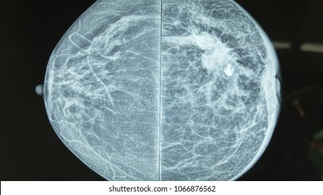 Mammography image showing left breast calcification to suggest malignancy.