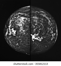 Mammography x ray