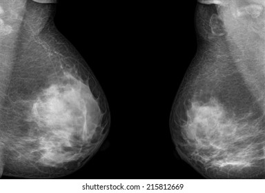 mammography x-ray picture