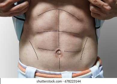 Man with 6 packs line on his abs for body plastic surgery concept