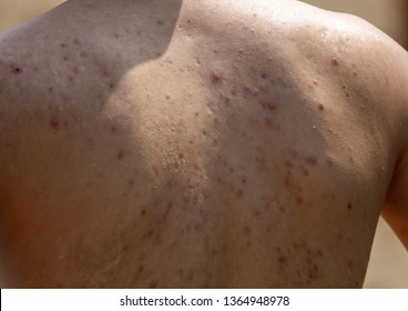 Man with acne on his back.