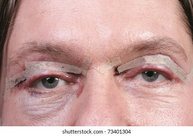 Man after eyelid surgery