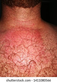 Man with an allergic reaction to bee sting on chest.  Photo taken 24hours after bee sting.