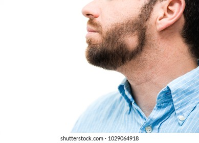 man with alopecia areata in the beard