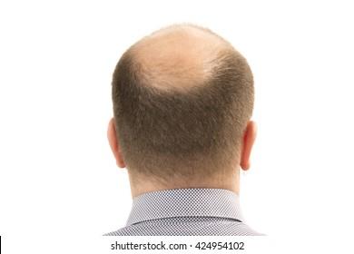 man alopecia baldness hair loss isolated