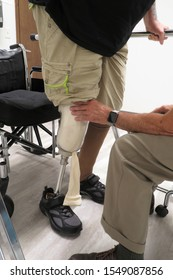 A man with an amputated leg stands for the first time with his new prosthetic leg.